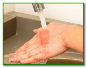 Попадание на кожу кислоты