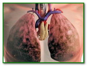 Как вывести никотин из лёгких
