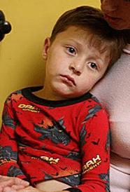 рвота у ребенка 5 лет