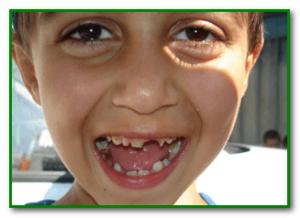 вред жвачки для детей