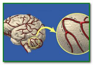 Очищение сосудов головного мозга Профилактика