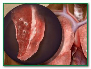 туберкулезная интоксикация симптомы