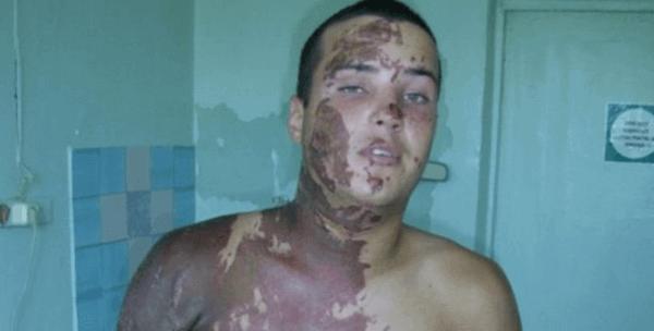 симптомы отравления серной кислотой