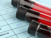 Народные и медикаментозные средства выводящие мочевую кислоту из организма