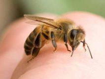 Первая помощь при укусах пчел, снимаем отек