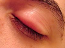 Как бороться с последствиями укусов мошки в глаз