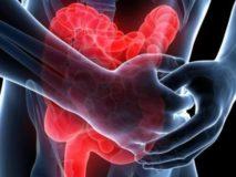 Симптомы и лечение острого и хронического энтероколита у взрослых