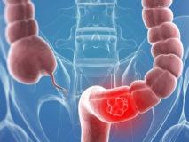 Симптомы полипов в прямой кишке и лечение полипоза
