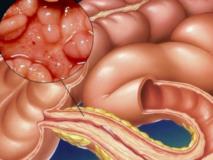 Заболевания подвздошной кишки, их симптомы и лечение