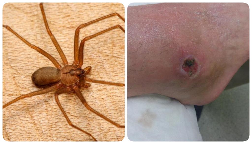 укус паука отшельник