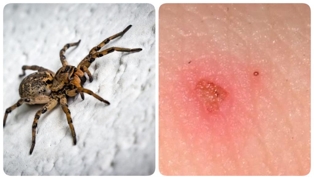 укус паука тарантул