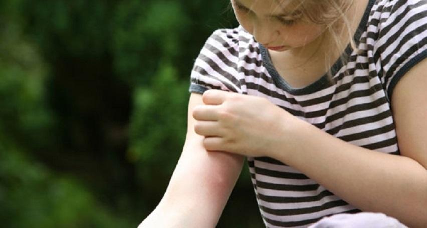 укус москита у ребенка